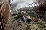 Взрыв в посольском квартале Кабула. На фото - один из раненых